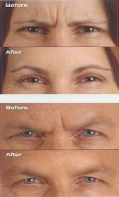 Botox 174 Cosmetic Injections